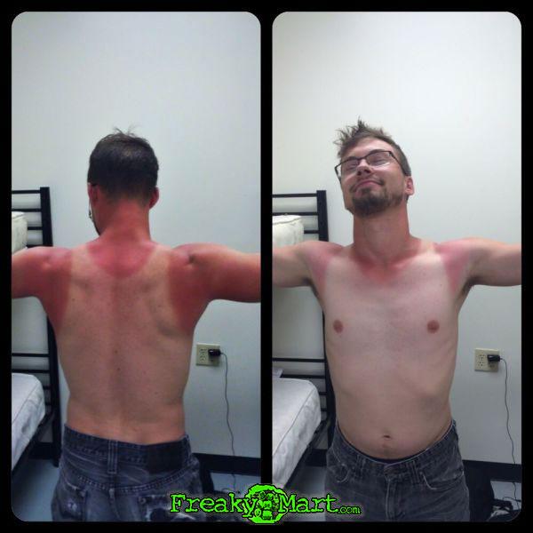 freakymart.com-wifebeater-sunburn-guy